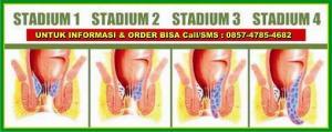 stadium-wasir1234